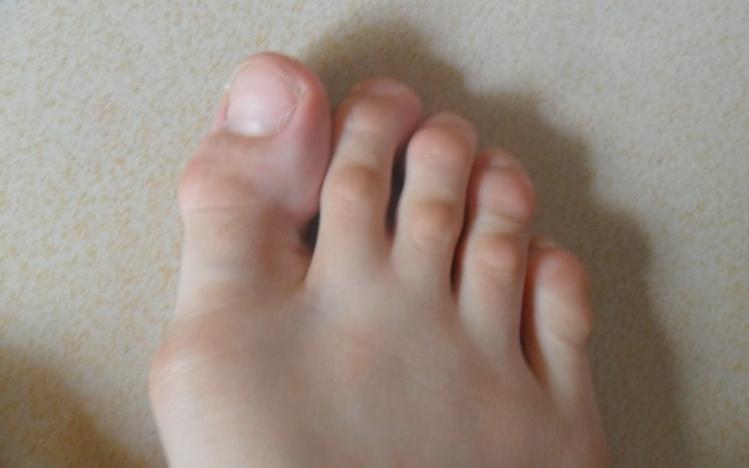 Top Tip #9 – Hammer Toes and Pointe Work