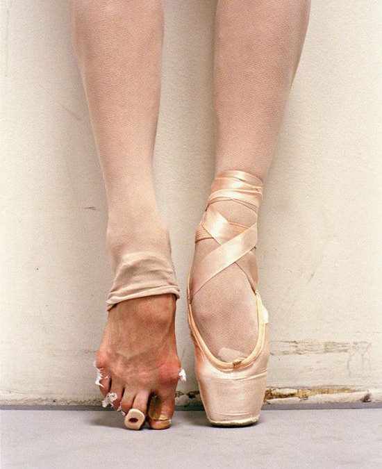 Top Tip #16 – Relieving Pain After Pointe Work